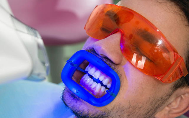 White Shining Teeth: Your Way To A Bright Smile